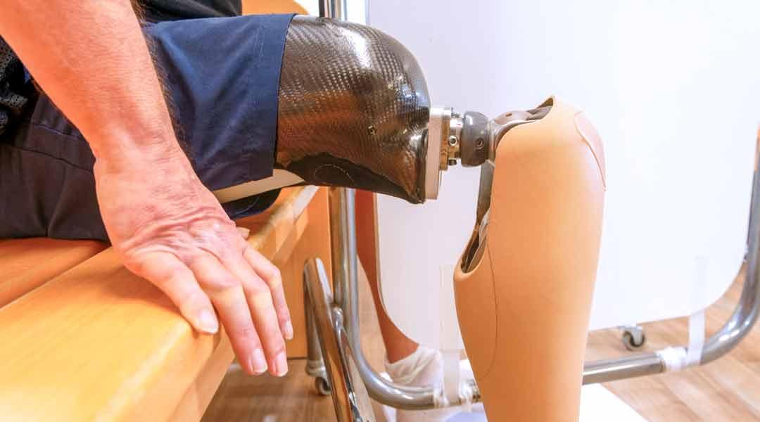 Orthopädische Reha Beinprothese