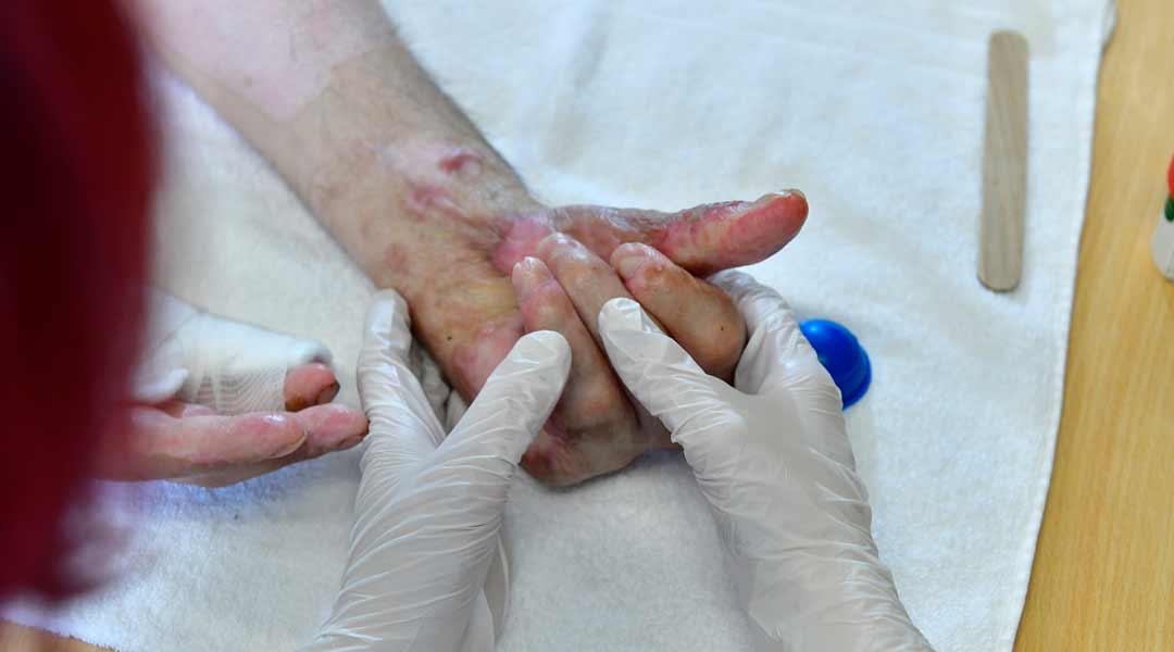 Schmerztherapie Narbenbehandlung an der Hand